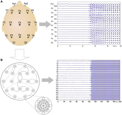 Comparison of recorded seizure with model output.Here we present a comparison between the clinically recorded onset of a generalized seizure event and the output of the modular Kuramoto network, demonstrating that critical features of this transition are captured by the phenomenological model. A: Epileptic seizure as captured by EEG. B: The Kuramoto model displays behavior similar to epileptic seizures. In the model, we assume local networks (where a node represents a recording site) to be all-to-all connected, analogous to a collection of cortical columns. These nodes are then directionally connected, resulting in a modular network with two scales of coupling.