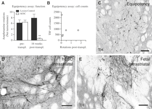 Functional Equipotency of Intrastriatal Transplanted hESC-DA Neurons and Comparable Morphology to Grafts of Fetal VM-Derived DA Neurons(A) 6-hydroxydopamine lesioned rats displayed a strong unilateral rotational bias upon administration of amphetamine, which was significantly normalized 16 weeks after intrastriatal transplantation of hESC-DA neurons (white bars, n = 5), whereas lesion controls (black bars, n = 6), not receiving any transplant, showed no significant changes when monitored in parallel.(B) Estimation of the number of surviving TH+ neurons within the graft revealed a relatively low number that gave rise to graft-mediated functional recovery.(C) Histological analysis revealed grafts with sparse numbers of TH+ neurons dispersed throughout.(D and E)When comparing transplants of hESC-derived (D) and fetal-derived (E) DA neurons 6 months posttransplantation, both groups revealed grafts rich in DA neurons that are indistinguishable on a gross morphological level.See also Figure S2. TH, tyrosine hydroxylase. In (A), data are represented as mean ± SEM. ∗∗p < 0.01. In (C)–(E), scale bars represent 100 μm.