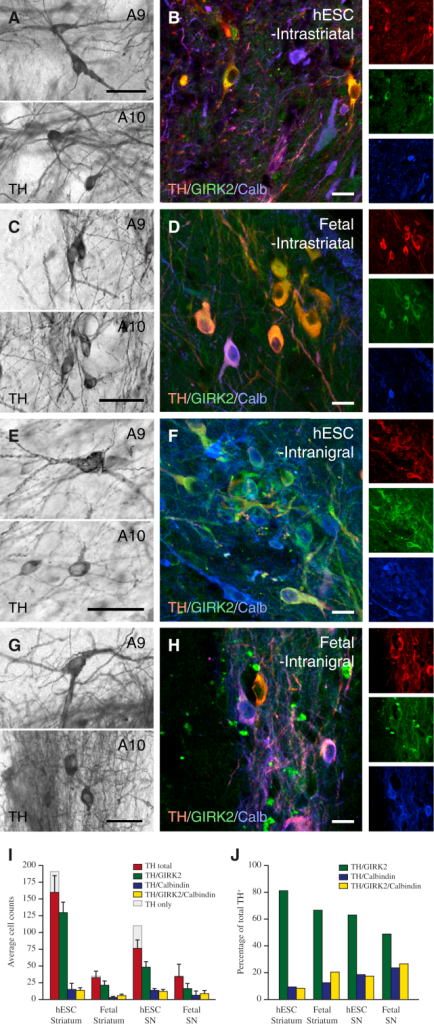 Comparison of A9 and A10 Midbrain DA Neuron Subtypes in Long-Term Grafts of hESC-DA Neurons and Human Fetal VM(A) Upon close inspection, hESC-DA neurons gave rise to TH+ dopaminergic neurons with an A9-like neuron morphology, characterized by large angular somas (upper panel), as well as A10-like neurons with small, round somas (lower panel).(B) The presence of neurons coexpressing TH and GIRK2 (red and green) and TH and Calbindin (red and blue) indicates that both midbrain DA neuron subtypes, A9 and A10, were contained in grafts of hESC-derived neurons.(C and D) Intrastriatal grafts of human fetal VM contained TH+ dopaminergic neurons with A9 and A10 morphologies, coexpressing GIRK2 and/or Calbindin.(E and F) Homotopic placement of hESC-DA neurons in SN resulted in large numbers of TH+ dopaminergic neurons with mature A9 and A10 morphologies, confirmed by coexpression of TH with GIRK2 and Calbindin, respectively.(G and H) Fetal VM tissue grafted to the SN displayed the same ability to generate transplants with dopaminergic neurons of A9 and A10 morphologies and protein expression (H).(I and J) The number and proportion (J) of TH+ neurons, coexpressing GIRK2, Calbindin, or both markers, was quantified in all groups (n = 3 per group).Calb, Calbindin; GIRK2, G protein-regulated inward-rectifying potassium channel 2; TH, tyrosine hydroxylase. In (I) and (J), data are represented as mean ± SEM. In (A), (C), (E), and (G), scale bars represent 50 μm. In (B), (D), (F), and (H), scale bars represent 20 μm.