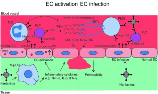 Mechanisms of vasculopathy in hantavirus infections. The recognition of hantaviruses by macrophages (Mφ) or dendritic cells (DCs) induces proinflammatory cytokines, which evoke a change from anti- to pro-adhesive phenotype of endothelial cells (ECs). Pro-adhesive ECs bind monocytes (MOs) through ICAM-1 – integrin β2 interaction, and platelets (PLTs) through vWF through αIIbβ3 integrin interaction. Activated MOs and PLTs then respectively promote coagulation through tissue factor (TF) and contact activation pathway (factor XII), to restrict the spread of the virus. Simultaneously hantavirus-infected ECs display viral glycoproteins on their surface, which respectively bind β2 and β3 integrins of polymorphonuclear neutrophils (PMNs) and PLTs. The binding results in the release of neutrophil extracellular traps (NETs) from PMNs and increased activation of PLTs. These virus-induced events enhance inflammation and may result in an excessive formation of immunothrombosis. Complement and contact pathway activations, both associated with immunothrombosis, contribute to vascular leakage through anaphylatoxins C5a and C3a, membrane attack complex (MAC) and bradykinin (BK).