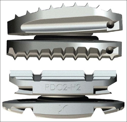 Side view (top image) and front view (bottom image) of the Discocerv implant showing that the superior plane is convex and lordotic, mimicking the normal anatomy