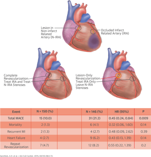 Complete Versus Lesion-Only Revascularization in Acute MIOverview of the CvLPRIT trial showing the randomization strategy and main results. CI = confidence interval; CvLPRIT = Complete Versus Lesion-Only Primary PCI trial; HR = hazard ratio; IRA = infarct-related artery; MACE = major adverse cardiac event(s); MI = myocardial infarction; N-IRA = non–infarct-related artery.
