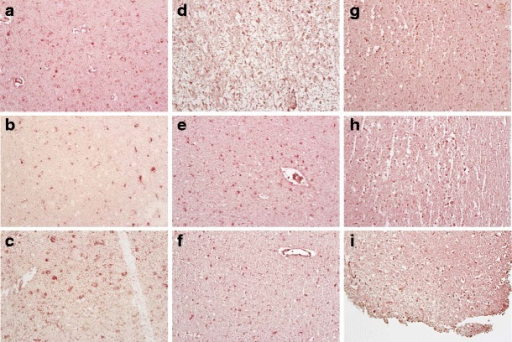 Presence of CD68+ macrophages/microglia in normal and MND/HAD groups. See staining paradigm as given in figure legend 1. a case 14, normal; b case 24, normal; c case 16, normal; d case 1, normal; e case 17, normal; f case 5, normal; g case 2, normal; h case 11, MND; and i case 13, HAD