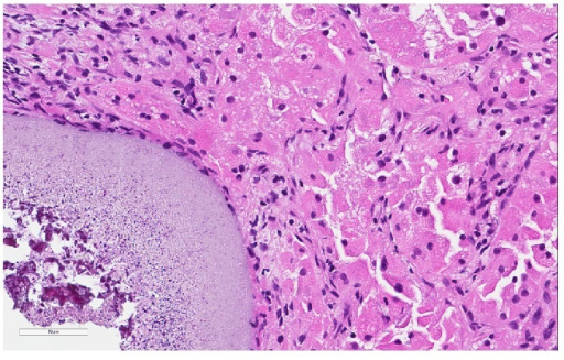 Colocalization of metastatic renal cell carcinoma and a trisacryl gelatin microembolus. The embolus is shown in the left lower corner (hematoxylin-eosin, original magnification ×20).