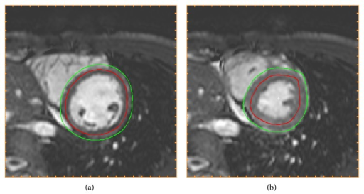 Initialization of segmentation (Step 3). The initializations of endocardial (red) and epicardial (green) borders resulting from Step 3 in the algorithm, shown in end-diastole (a) and end-systole (b) in the midventricular slice also used for Figure 1. The endocardial initialization is an estimation of the midmural line and the epicardial initialization is an estimation of the epicardial border.