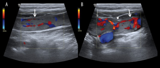 Color Doppler ultrasound of neck; (A) the longitudinal image of the left internal jugular vein (IJV) shows the hyperechoic filling defect and vascularization of tumour thrombus (thick arrow). (B) the transvers image of the vascularization of thyroid mass (thin arrow) and the invasion region (arrow head).