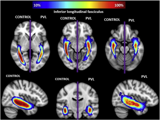 Spatial distribution of inferior longitudinal fasciculus (ILF). Comparison of spatial distribution of the ILF after normalization to MNI space, between control and PVL groups. At each voxel, the color map indicates the proportion of subjects in each cohort that had the ILF pass through it.