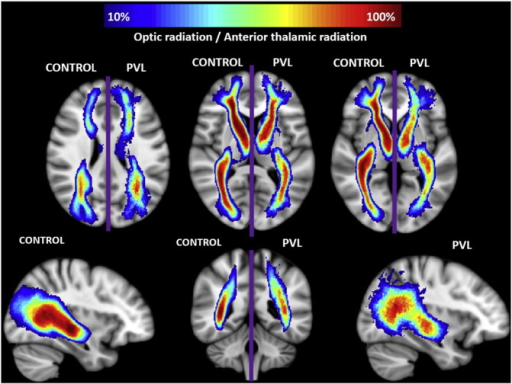 Spatial distribution of optic radiation (OR) and anterior thalamic radiation (ATR). Comparison of spatial distribution of the OR and ATR after normalization to MNI space, between control and PVL groups. At each voxel, the color map indicates the proportion of subjects in each cohort that had the OR/ATR pass through it.