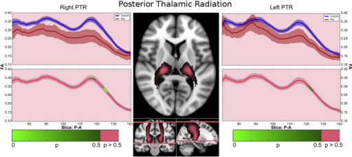 "Posterior thalamic radiation (PTR) along-tract statistics. In the controls, there were three segments identified of the ILF within the fractional anisotropy tract profile which corresponded to the trajectory of the fiber tract extending from the posterior portion of the thalamus (pulvinar) to the parietal cortex. The more inferior segment demonstrated gradual increasing of fractional anisotropy level up to a ""peak"", the middle segment corresponding to a drop in fractional anisotropy at the level of the parietal lobe crossing fibers and the third superior parietal segment demonstrated a second peak with gradual decreasing levels of fractional anisotropy noted as the fiber tract extended to the parietal cortical gray matter. When comparing this FA tract profiles to the preterm PVL cases, the greatest reduction in FA occurred in superior parietal segment of the tract."