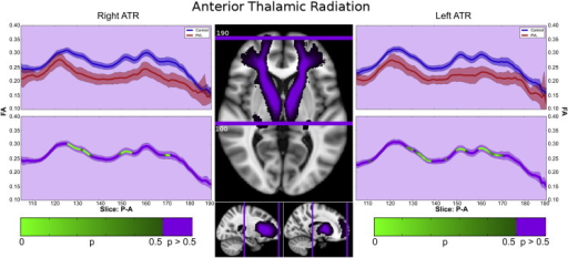 Anterior thalamic radiations (ATR). In the controls, there were two main segments observed in the ATR within the fractional anisotropy tract profile. The first major segment consists of the initially lower FA starting within the thalamus, with a peak centered on the anterior limb of the internal capsule. This more posterior section retains its relative shape when comparing the PVL population to the controls. The second major segment consists of undulating peaks anteriorly, likely a result of densely crossing fibers including the uncinated fasciculus and curving genu of the corpus callosum. The PVL subjects show greater difference between the control subjects in this segment, missing the distinct valleys observed in the regions of crossing fibers. Both right and left ATRs show this pattern.