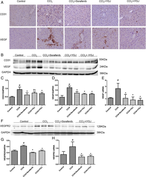 Effects of YGJ and iYGJ on CCl4-induced liver angiogenesis. a Immunohistochemistry of liver sections for CD31 and VEGF (400×). b, f Western blot quantified protein expression of CD31, VEGF and VEGFR2. GAPDH expression was a control for equal protein loading. c, d, g Quantification of band intensities of expressed proteins. n = 3. e, h VEGF and VEGFR2 mRNA expression was measured by RT-PCR. n = 3. Quantitative data were reported as means ± SD. #, compared to control group P < 0.05; *, compared to CCl4 model group P < 0.05