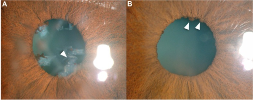Slit-lamp photograph.Note: (A) Arrowhead shows pupillary membrane in the right eye and (B) Arrowheads show Koeppe nodules in the left eye.