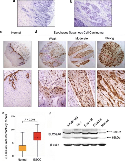 Representative immunohistochemical staining of SLC39A6 in Kazakh ethnic. The negative controls for the normal tissues (a) and esophageal cancer (b) specimens (magnification ×100). Representative SLC39A6 immunostaining in non-tumor esophageal (c) and esophagus squamous cell carcinoma (d) tissues with weak, moderate, or strong expression (top panel magnification ×40; middle panel magnification ×100; bottom panels magnification ×200). eBoxplot shows that SLC39A6 expression levels in ESCC are significantly higher than that in normal esophageal squamous epithelium from Kazakh population (p < 0.001). f Expression levels of SLC39A6 proteins were determined in esophageal carcinoma cell lines (Eca109, EC9706, TE-1, and KYSE-150) and a normal esophageal epithelium cell line (HEEC) using western blotting