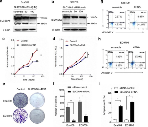 Knockdown of SLC39A6 inhibits cell growth and enhances cell apoptosis in vitro. a, b Eca-109 and EC9706 cells were transfected with either SLC39A6-siRNA or control siRNA after 72 h, the cells were collected, and total cellular protein was used for western blotting analysis with anti-SLC39A6 antibody as described. β-actin served as an internal control. c, d Silencing endogenous SLC39A6 inhibits cell growth as determined by MTT assays. e Silencing endogenous SLC39A6 inhibits cell growth as determined by colony formation assays. f The histograms indicate that the number of colonies formed by cells treated with SLC39A6 siRNA was far fewer than that of control siRNA-treated cells (*p < 0.05; **p < 0.01). g, h Cell apoptosis was detected by Annexin-V/propidium iodide combined labeling flow cytometry in Eca-109 and EC9706 cells upon inhibition of SLC39A6 protein. Flow cytometry analysis shows a large increase in the percentage of cells programmed for apoptosis in Eca-109-siRNA and EC9706-siRNA cells comparing to the corresponding negative controls. i Statistics of the results in (g) and (h). *p < 0.05, versus scramble control (Student's t test). Error bars represent mean ± SD from three independent experiments