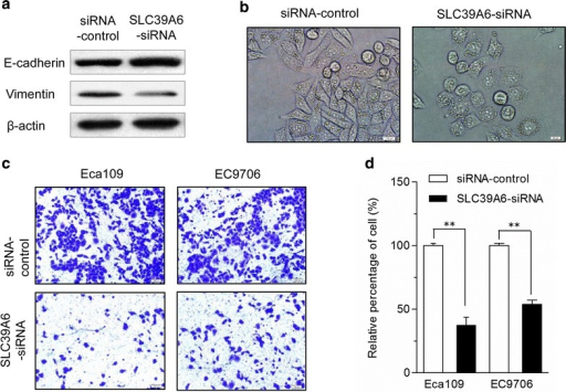 SLC39A6 promotes the EMT phenotype and inhibition of SLC39A6 expression diminished invasion capacity of Eca109 and EC9706 cells. a SLC39A6-siRNA was transfected into Eca109 and EC9706 cells for 72 h and cells were harvested for an immunoblot analysis of vimentin and E-cadherin. Silencing SLC39A6 was accompanied by the increased expression of E-cadherin and loss of vimentin, which are all hallmarks of EMT markers. Knockdown of SLC39A6 results in morphological changes in Eca109 cell. b Photographs were taken using a Nikon microscope (phase contrast). Original magnification ×200. c Cell invasion assay was performed using Matrigel-coated transwell plates for Eca109 and EC9706 cells. Knockdown of SLC39A6 significantly reduced cell invasiveness in the two esophageal cancer cell lines compared with that in SLC39A6-siRNA controls. d The relative percentage of cells passing through a Matrigel filter (**p < 0.01). All experiments were performed at least three times with consistent and repeatable results