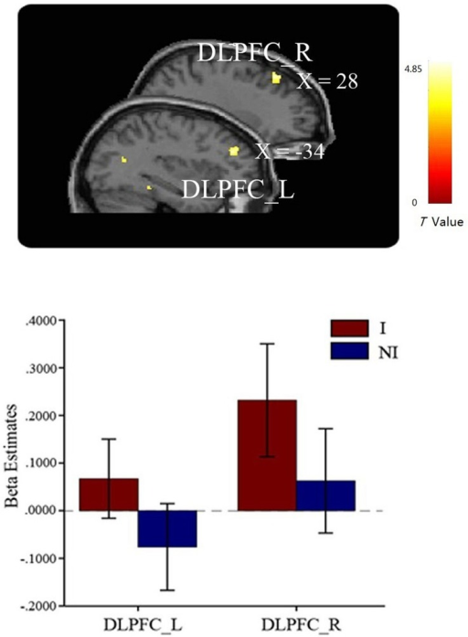 Greater activations in bilateral DLPFC were found in the interested condition compared to the not-interested condition when participants viewing the compound images. Error bars indicate one SEM. I, interested condition; NI, not-interested condition.
