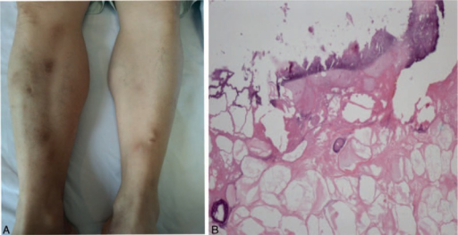 "Subcutaneous nodule on the lower extremities. (A) Tender erythematous subcutaneous nodules on the lower extremities; (B) necrosis with nuclear debris and ""ghost"" cells' characterized by anucleated adipocytes with partially digested shadowy cell membranes."