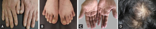 Various ectodermal findings. (A) Onychodystrophy of fingers. (B) Onychodystrophy of toes as well as hyperpigmentation of the first toe's nail plate. (C) Hyperpigmentation of both palmar surfaces. (D) Hair loss, including crown area thinning and breakage.