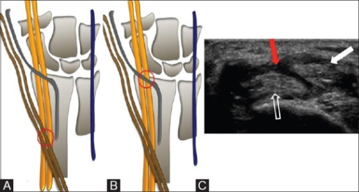 Proximal and distal intersection points with distal intersection syndrome (A-C). Schematic diagram (A) shows the 1st extensor compartment tendons (brown) crossing over the 2nd extensor compartment tendons (yellow)—proximal intersection point (red circle). Schematic diagram (B) shows the extensor pollicis longus (EPL) tendon (grey) crossing over 2nd extensor compartment tendons (yellow) - distal intersection point (red circle). Short axis (C) ultrasound showing the tendon (white arrow) crossing over the 2nd extensor compartment tendons (open arrow) associated with tendon sheath thickening (red arrow)