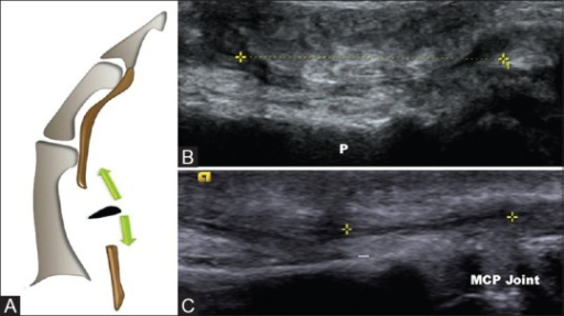 Flexor pollicis longus tendon tear (A-C). Schematic diagram (A) shows tear of the flexor pollicis longus tendon with torn retracted edges. Long axis (B and C) ultrasound views in 2 different patients shows tear of the flexor pollicis longus tendon with retracted ends marked with calipers at different levels. (Proximal phalynx - P)
