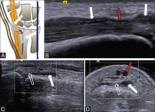 EPL tenosynovitis (A-D). Schematic diagram (A) of the extensor tendons of the wrist shows the common site of EPL tendinopathy (represented in red circle). Long axis (B) ultrasound at the level of the wrist shows fluid around the extensor pollicis longus (EPL) tendon (white arrows) with absence of fluid at the level of retinaculum (red arrow). Short (C) and long (D) axis ultrasound at interphalengeal joint level shows soft tissue thickening (arrow) around the EPL tendon (open arrow). Subcutaneous veins are normally seen over the extensor tendon (red arrow in d) and should not be confused with tenosynovial fluid