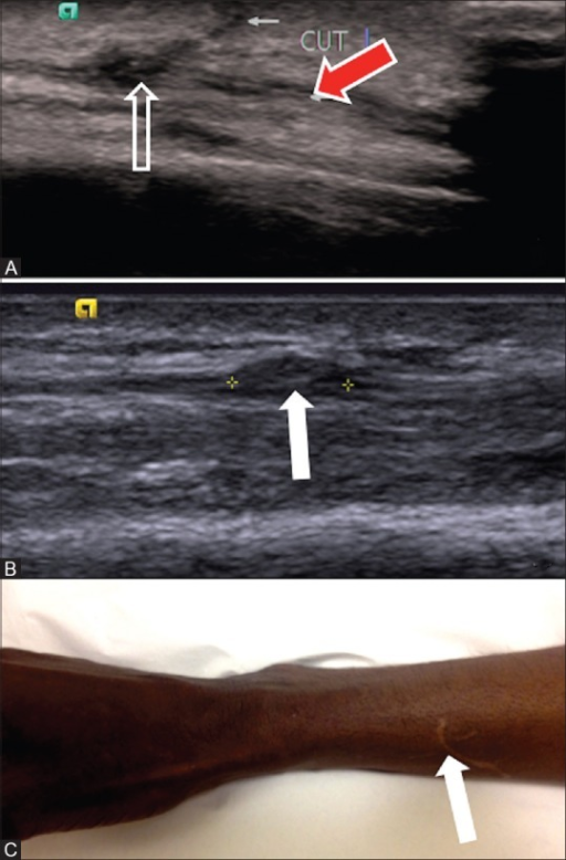 Neuroma in the superficial branch of the radial nerve in a patient with cut injury presenting with pain and paresthesia over thumb (A-C). Long axis ultrasound view (A) of the superficial branch of the radial nerve (red arrow) with discontinuity (open arrow) and the cut site (small white arrow). Follow up long axis ultrasound (B) after 4 months shows neuroma formation (arrow). Patient photograph (C) shows the injury scar (arrow)