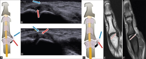 Ulnar collateral ligament tear (A-B). Schematic diagram (A), long axis ultrasound (B) shows intrasubstance reduced tear of the UCL (red arrow) with normally positioned adductor pollicis aponeurosis (blue arrow). Schematic diagram (C) and long axis ultrasound (D) show avulsed UCL with bony fragment (red arrow) and normally positioned adductor pollicis aponeurosis (blue arrow). Magnetic resonance imaging show avulsed UCL (red arrow) on coronal T1 (E) and PD fat-sat (F) images. A small bony defect was noted along the inferomedial aspect of the base proximal phalanx
