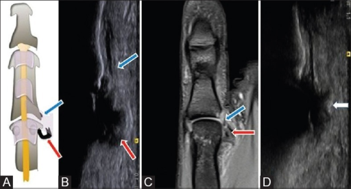 Ulnar collateral ligament tear with Stener's lesion (A-D). Schematic diagram (A) and long axis ultrasound (B) and coronal PD fat sat MRI (C) shows torn proximally retracted balled-up ulnar collateral ligament (red arrow) with distally interposed adductor pollicis aponeurosis (blue arrow). Long axis ultrasound (D) in another patient shows ulnar collateral ligament tear with Stener's lesion with avulsed bony fragment (white arrow)