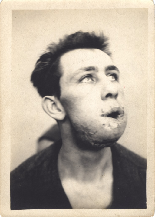 <p>Black and white photograph of an injured soldier with a large facial wound to his chin and lower lip. A wound that has been sutured can be seen under the chin.</p>