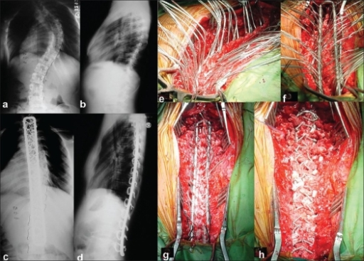 Pre operative (a,b) and post operative (c,d) x-rays of dorso lumbar spine shows good correction, balance and maintenance of a scoliotic deformity at 4 ½ years follow up. Intraoperative photographs show different stages of instrumentation (e-h)