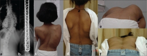 (a,b) Preoperative and post operative dorso lumbar x-rays in a girl with Turner's syndrome shows a good correction of scoliotic deformity. Clinical photographs (c-f) showing good correction and maintenance, alongwith rib hump improvement at 3 ½ years follow up
