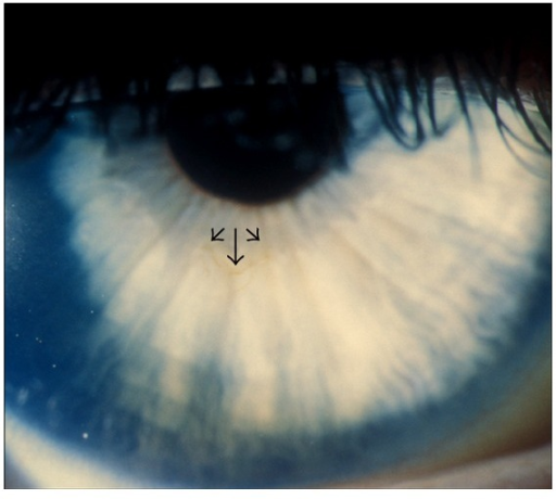 Line of corneal pigmentation (arrowheads).