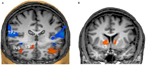 "Network activation and deactivation during neurofeedback.a) Activation of the insular cortex (INS) bilaterally and the right ventral striatum (VS) supported the neurofeedback task, whereas the temporoparietal junctions (TPJ) of both hemispheres were deactivated. The TPJ is recognised as part of the brain's ""default mode network"" that is deactivated during effortful tasks. For a full documentation of the activated and deactivated networks see Table 3. View from the front and above. The right side of the brain is on the observer's left (Talairach coordinates of virtual cuts: y = 25, z = −2). b) Successive training sessions produced further increases of activation during upregulation periods in the VS bilaterally (coronal view at y = 7, the right side of the brain is on the observer's left)."