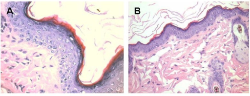 Melanocytes activation following subcutaneous injection of 1.0 mg α-gal glycolipids into the KO mouse. A. The epidermis displays 4–5 layers of cells 7 days post injection in the black spot area. The apical region under the keratinous layer (stained in red) is filled with many melanin granules. B. The injected skin four weeks post injection. The epidermis displays normal structure of ~2 layers of epidermal cells, the amount of melanin granules is residual and the overall color of the skin returns to normal pink (x400).
