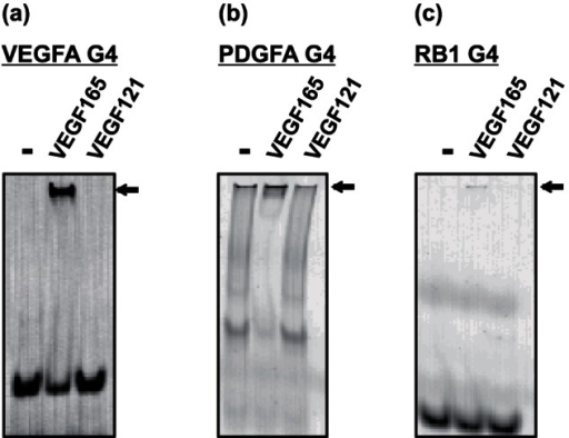 Gel shift binding assay of VEGFA G4, PDGFA G4, and RB1 G4 to VEGF165 and VEGF121.In the presence or absence of the proteins, fluorescent-labeled VEGFA G4, PDGFA G4, and RB1 G4 were electrophoresed on 12% polyacrylamide gel in TBE buffer, and fluorescence images were then detected. Arrows indicate bands of DNA–protein complex. Gel shift assay of VEGFA G4 (a), PDGFA G4 (b), and RB1 G4 (c) to VEGF165 and VEGF121.