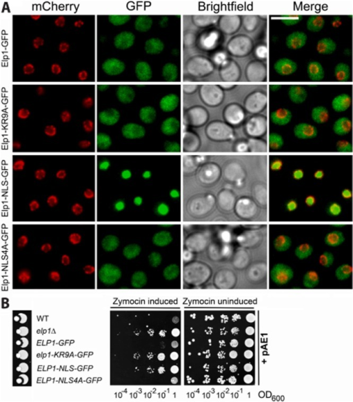 The nucleo-cytoplasmic distribution of Elp1 is unaffected by basic region mutations.A. Representative images of strains expressing Nic96-4mCherry (red) together with GFP-tagged wild-type Elp1, Elp1–KR9A, Elp1–NLS or Elp1–NLS4A (green). Elp1–NLS contains the NLS from Cbp80 and Elp1–NLS4A contains a mutant version containing 4 alanine substitutions, inserted in each case between the Elp1 and GFP sections of the fusion protein. Cells were grown to log phase in YPAD medium and then fixed for imaging. Scale bar: 5 μm.B. Zymocin sensitivity assays of the indicated strains as described in the legend to Fig. 2. Wild-type (WT, BY4741) and elp1Δ (YRDS250) served as controls for zymocin sensitivity and resistance respectively.