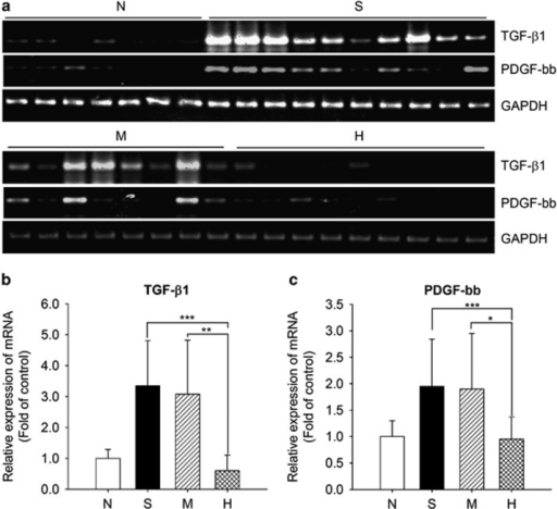 Analysis of profibrogenic cytokine expression. (a) Detection of TGF-β1 and PDGF-bb mRNA in individual rats by RT–PCR. (b, c) Mean relative expression levels of TGF-β1 and PDGF-bb in liver tissues from normal rats, N; control fibrotic animals, S; or fibrotic animals transplanted with MSCs, M, or MSC/HGF, H. Data are normalized to GAPDH expression levels and represent the mean±s.d. for each group (*P<0.05, **P<0.01, ***P<0.005).
