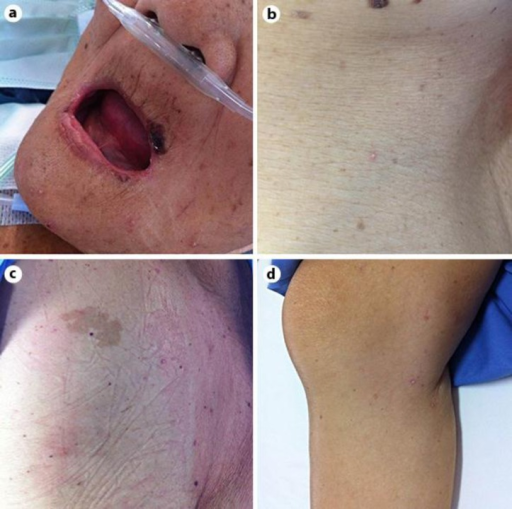Multiple discrete small pustules distributed on the face (a), trunk (b) and extremities (c, d).