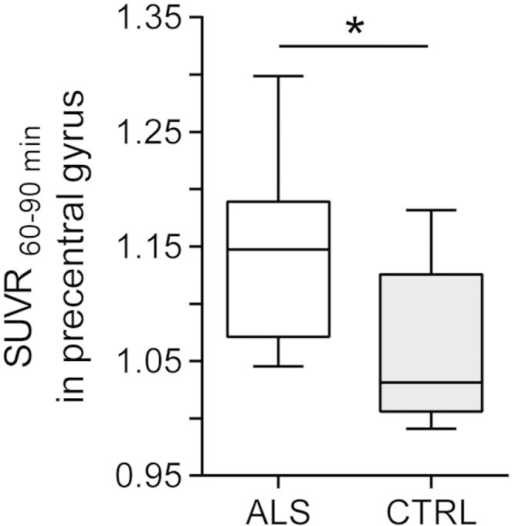 Increased glial activation in primary motor cortex in ALS. Boxplots for [11C]-PBR28 SUVR60–90 min for the precentral gyrus a priori ROI for individuals with ALS and healthy controls. Patients with ALS exhibit significantly increased binding in the motor cortex compared to healthy controls, *p < 0.05.