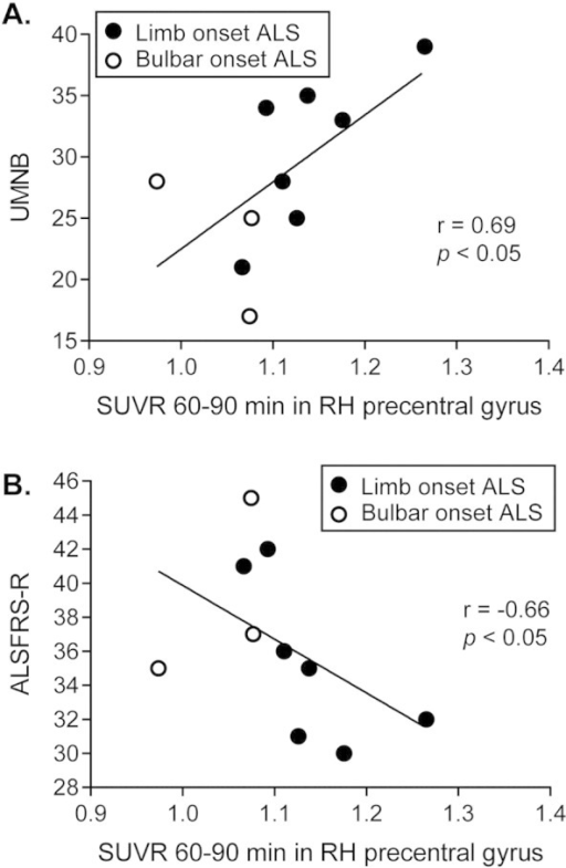 Correlation between glial activation and ALS disease severity. Significant correlations between [11C]-PBR28 binding in the primary motor cortex and ALS disease severity assessed using UMNB and ALSFRS-R were observed. A. Patients with higher UMNB show increased binding in the motor cortex as shown by a positive correlation between UMNB scores and SUVR60–90 min in the right precentral gyrus a priori ROI. B. A negative correlation between the ALSFRS-R and SUVR60–90 min in the right precentral gyrus reflects the fact that patients with a higher disability (lower ALSFRS-R score) show increased PBR28 binding in the motor cortex.