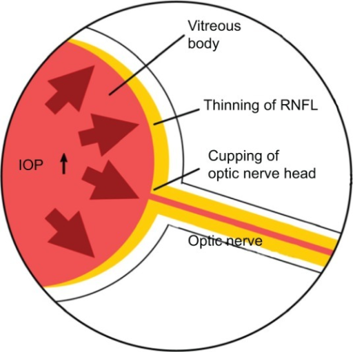 Optic Nerve Cupping: Pathogenesis Of Glaucoma.Notes: Glaucoma Is A Blindness