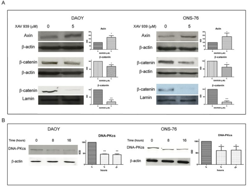 XAV939 inhibits TNKS PARP-activity in MB cell lines.WB analysis and densitometry of total and nuclear MB cells extracts after XAV939 treatment: MB cell lines (DAOY, ONS-76) were treated with 5 μM XAV939 or with an equal volume of DMSO. A. Both cell lines showed an increase in total Axin protein levels at 8 h after treatment (80% and 70% respectively in ONS-76 and DAOY compared to DMSO treated control, p <. 05), followed by a β-catenin decrease in total (30%, p <. 05) and, in particular, in nuclear extracts, at 16 h after drug administration (80% reduction compared with control, p <. 001). B. XAV939 induced a DNA-PKcs protein level reduction of about 40% at 8 h and 16 h after treatment compared to non-treated control cells (p <. 05 in A, p <. 01 in B). Densitometry data (mean ± s.e.) were normalized with β-actin (for total extracts) and lamin-b (for nuclear extracts) and are representative of the results derived from three independent experiments.