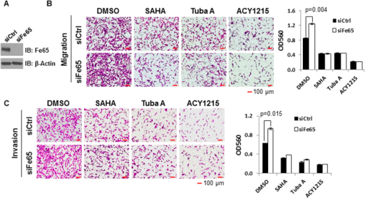 The effect of Fe65 on breast cancer cell motility is acetylation-sensitive.MDA-MB-231 cells were transfected with control or Fe65 siRNA. 40 h post transfections; cells were treated with DMSO, 1 μM SAHA, 2 μM tubastatin A (Tuba A) or 2 μg/ml ACY1215 for 8 h. (A), Western blot analyses were performed to show efficient Fe65 knockdown and β-actin blot was included to show even loading. (B) and (C), Cell migration (B) and invasion (C) assays were performed as in Fig. 1A and photographed 16 h after plating. Quantitative data were presented as bar graphs and data statistics performed as described in Fig. 1.