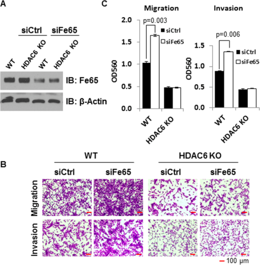 The ability of Fe65 to suppress cell motility depends on HDAC6 status.WT and HDAC6 KO MEFs were transfected with control or Fe65 siRNA for 48 h. (A), Western blots were performed to show the efficient knockdown of Fe65 and β-actin blot was included to show even loading. (B), 4 × 104 cells were plated into trans-well inserts and cells were fixed and photographed 16 h after plating. (C), Quantitative data were presented as bar graphs and data statistics performed as described in Fig. 1.