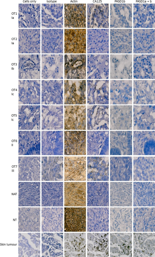 Expression of PASD1 in ovarian cancer TMAs. Images show the PASD1 staining of representative ovarian cancer samples at various stages of the disease. Each sample is identified by a unique sample identifier, ie, OT1, OT2, OT3, etc, followed by disease stage as indicated by a roman numeral and an alphabetical letter, ie, Ia, Ib, etc. PASD1 expression was predominantly absent from the ovarian cancer tissues tested. CA125 was used as a comparator as it is the industry standard for the confirmation of a diagnosis of ovarian cancer. Cells only and isotype controls were used as negative controls and actin as a positive control. The single melanoma (skin tumor) sample on each TMA was used as a positive control for immunolabeling with the PASD1 antibodies. Skin tumor samples expressed higher levels of actin, CA125, and PASD1 but did not immunolabel when incubated with isotype control antibody. NATs and normal ovarian tissues (NTs) were also tested and were predominantly negative except for actin expression.
