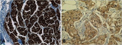 Immunohistochemical findings of p27Kip1.a Nuclei of cancer cells showing highly positive immunoreactions for p27Kip1. b The cytoplasm of cancer cells was weakly positive, whereas the nuclei were negative for p27Kip1