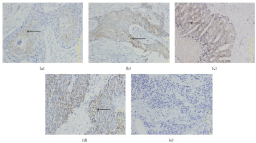 N-cadherin expression in ESCC tumor samples. (a) Phase I, (b) phase II, (c) phase III, (d) phase IV, and (e) healthy control tissue. Arrow indicates N-cad+ cell. ×400 magnification.