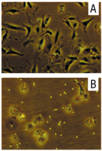 Morphology of negatively isolated RA-SFB and macrophages upon reculture. When recultured, the RA-SFB obtained by negative isolation with Dynabeads® M-450 CD14 showed almost exclusively spindle-shaped, flat or stellate morphology (A). Recultured CD14+ cells (B) exhibited small, round, macrophage-like morphology with attached magnetobeads, and contained only very few cells with FB morphology. Original maginification: 368 ×.