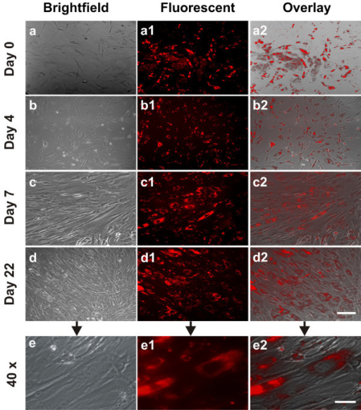 Quantum dot labeled human mesenchymal stem cells undergoing proliferation. hMSCs were incubated for 16 hrs in a 30 nM solution of bioconjugated QDs (a-a2). Following the removal of extracellular QDs, QD-labeled hMSCs and unlabeled hMSCs of the same subpopulation were continuously cultured for 4, 7 and 22 days (b-b2, c-c2, d-d2, respectively). Scale bar: 30 μm. QDs were internalized in the cytoplasm, even after 22 days of culture-expansion (e-e2), apparently endocytosed as aggregates. Scale bar: 5 μm. Reproduced from [89] and contributed by Jeremy Mao (Columbia University, New York).