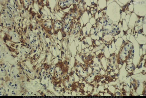 Immunostaining for epithelial membrane antigen (EMA) confirms the meningeal nature of the neoplasm.